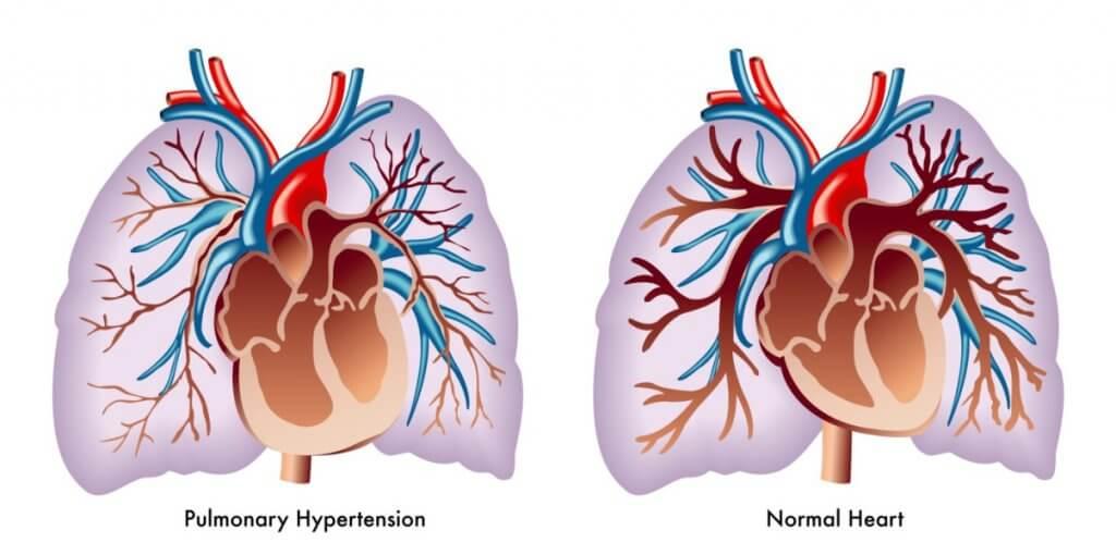 What is pulmonary arterial hypertension