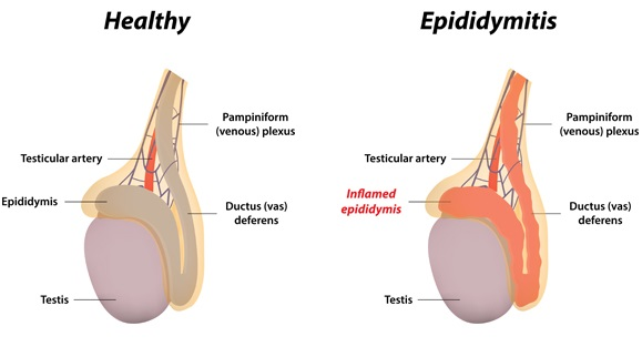 Inflammation of the epididymis