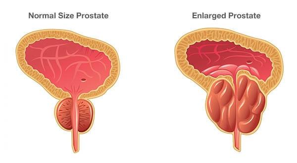 What are symptoms of benign prostatic hyperplasia